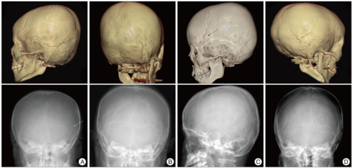 A skull fracture is any break in the cranial bone also known as the skull There are many types of skull fractures but only one major cause an impact or