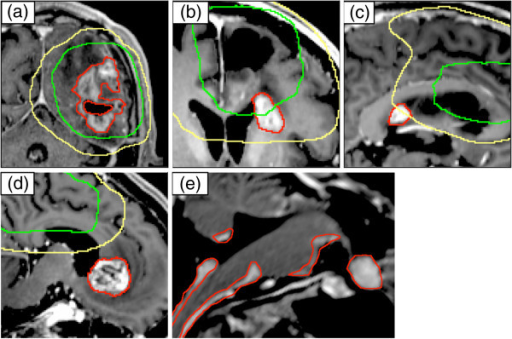 Examples of recurrence patterns. Examples of recurrence patterns on T1-weighted magnetic resonance imaging with contrast: central (a), in-field (b), marginal (c), out-field (d), and distant recurrences (e). Red contours indicate recurrent tumors. Green and yellow lines indicate 95% isodose lines of 60 Gy and 50 Gy, respectively.