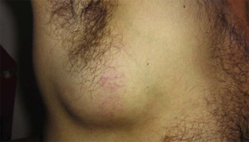 A large mass involving soft tissues in the chest wall, without compromising theskin or axillary lymphadenopathy