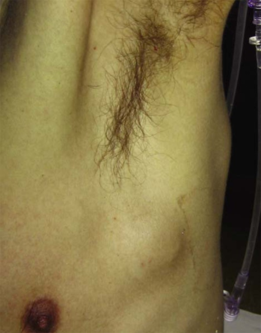 A subcutaneous tumor located on the chest wall.