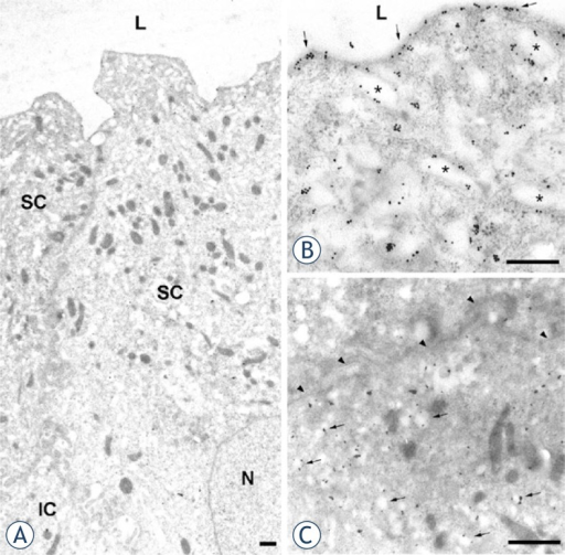 Immunoelectron microscopy of uroplakins in normal urothelium. (A) Two neighbouring superficial umbrella cells (SC), contain numerous mature fusiform vesicles. A part of underlying intermediate cell (IC) is also seen. (B) In umbrella cell uroplakin-positive apical plasma membrane (arrows) and uroplakin-positive mature fusiform vesicles (asterisks) are heavily labelled with colloidal gold particles. (C) Intermediate cell contains uroplakin-positive transporting vesicles (arrows). The basolateral plasma membrane (arrowheads) is uroplakin-negative. N – nucleus, L – lumen. Scale bars: 1 μm.