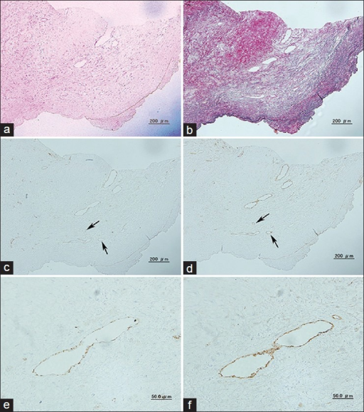 Histological and immunohistological findings in the carotid artery plaque from patient 1. (a) H and E stain, (b) Elastica von Gieson stain, (c) CD31 stain (×100), (d) CD105 stain (×100), (e) CD31 stain (×400). The microvascular endothelial cells are stained faintly, (f) CD105 stain (×400). The microvascular endothelial cells are strongly stained in the whole circumference. The arrows show the microvessels stained negatively for CD31 and positively for CD105