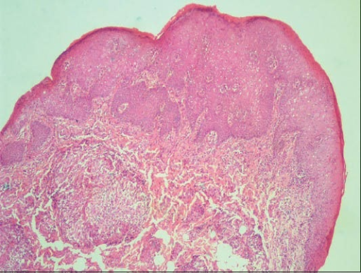 Stratified squamous epithelium exhibiting pseudoepitheliomatous hyperplasia with rich fibrocellular and fibrovascular connective tissue stroma. (H&E stain, ×40)