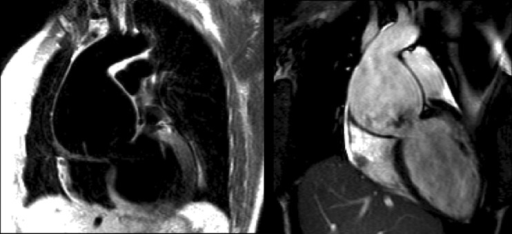 Cardiac magnetic resonance images. Dark blood spin-echo image (left) and a diastolic frame from complete cine acquisition (right) of severe aortic root dilatation of typical Marfan morphology with type A dissection and functional severe eccentric AR and LV dilatation. The aortic root diameter is 8 cm.