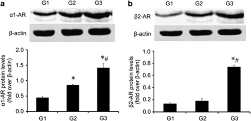 CS exposure increased the expression of the adrenergic receptor protein. G3 was treated with a series of unexpected chronic stresses for 4 weeks, and then, the protein levels of α1-AR (a), and β2-AR (b) were analyzed by western blotting. *compared with G1 P<0.01, #compared with G2 P<0.01.
