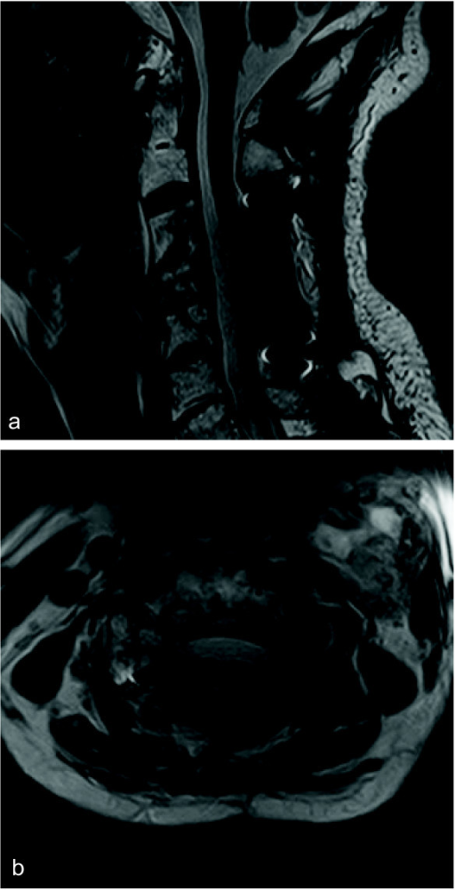 Postoperative sagittal (a) and axial (b) T2-weighted magnetic resonance image showing a reduced tumor size and spinal cord decompression.