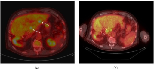 Axial PET-CT images (a) before biliary drainage and SIRT and (b) two months after SIRT, at the level of segments 2 and 3. Significant response to treatment is evident, with resolution of FDG avid hepatic metastases (arrows). However, progression of extrahepatic disease was noted in portocaval and periaortic nodes.
