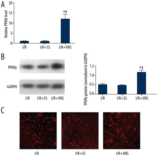 Upregulation of PPARγ expression induced by VNS at 24 h post-reperfusion in the cerebral ischemic cortex. (A) PPARγ gene expression induced by VNS in rat brain measured by RT-PCR. Data are presented as mean ±SEM. (*p<0.05 compared with I/R group and #p<0.05 compared with I/R+SS group.) (B) PPARγ protein level after VNS assessed by Western blot at 24 h post-MCAO. Data are presented as mean ±SEM. A: I/R group B: I/R+SS group C: I/R+VNS group. (*p<0.05 vs. I/R group, #p<0.05 vs. I/R+SS group). (C) Immunofluorescence staining showing peri-nuclear PPARγ expression in the ischemic penumbra, and VNS treatment leading to an increase in PPARγ protein expression, A: I/R group; B: I/R+SS group; C: I/R+VNS group. Scale bar=75 μm.