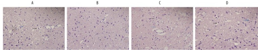Histopathological changes at 24 h post-reperfusion after VNS treatment in rat with PPARr silencing or vehicle control. Brain slices were examined at a magnification of 400×. A: I/R+ LV-control group, B: I/R+VNS+LV-control group, C: I/R+LV-shPPARr group, D: I/R+VNS+ LV-shPPARr group. Black arrows represent perinuclear vacuolization and blue arrows represent pyknotic nuclei.