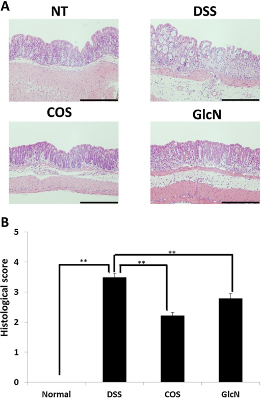Effect of orally administered COS on colon injury in experimental IBD model. (A) Sections of colon tissue were stained with hematoxylin and eosin. Data are for one mouse per group from the NT, DSS, COS, and GlcN groups. Bar = 200 μm. (B) Data are the mean ± S.E. of 30 fields/100× magnification field in each group (Steel-Dwass test). ** p < 0.01. Reprinted with permission. Copyright 2015 Elsevier [48].