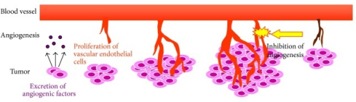 Depiction of tumor angiogenesis. Angiogenesis is an important tumor growth factor. Vascular endothelial cell proliferation is essential for the development of new blood vessels.