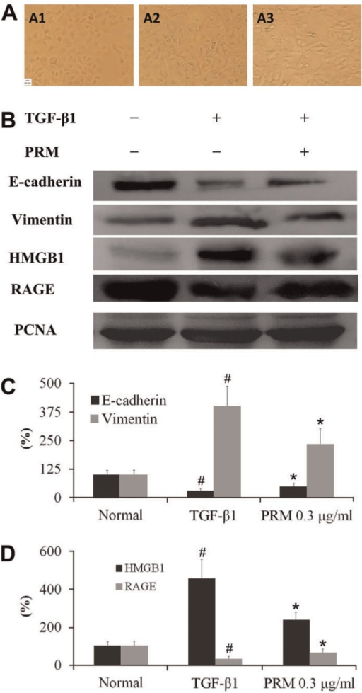 Effects of pulmonary rehabilitation mixture (PRM) on epithelial-mesenchymaltransition (EMT) in A549 cells. A, Representative lightmicroscopic appearance of A549 cells for the normal (A1),transforming growth factor (TGF)-β1-treated (A2), andTGF-β1+0.3 µg/mL PRM (A3). B-D, A549 cellswere incubated with TGF-β1 (5 ng/mL) for 24 h. E-cadherin, vimentin, highmobility group protein B1 (HMGB1), and receptor for advanced glycationend-product (RAGE) expression were analyzed by Western blot. Results arereported as percent increase over the normal. Data are reported as means±SD.PCNA: proliferating cell nuclear antigen. #P<0.01vs the normal group; *P<0.05 vs theTGF-β1 group (one-way ANOVA followed by Dunnett's test).