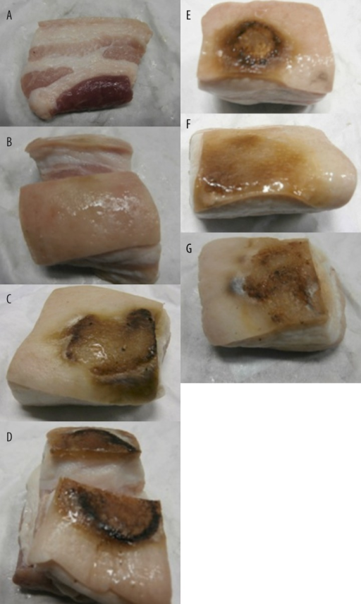 "The depth of WP penetration examined after 24 h. Impact of the examined dressing on bacon burns, in all samples above, the dressings were taken off after 5 minutes. (A) Control ""healthy"". (B) Moist gauze. (C) Aqua Gel. (D) Hydrocolloid with NaHCO3. (E) Control ""burned"". (F) WJ10. (G) Glycol hydrocolloid."