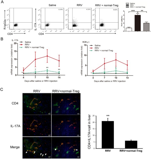 Adoptive transfer of normal Treg cells into BA mice suppresses RRV-induced generation of Th17 cells.Saline or RRV was injected within 12 hrs of birth. Tregs were injected i.p. 3 days post infection. (A) Representative FCM diagrams of Th17 cells from liver of RRV primed 7 days old mice. *** P<0.001, ** P<0.01, n = 11. (B) Hepatic mRNA for genes encoding IL-17A and its transcription factor ROR-γt were quantified by real-time PCR and expressed as fold change (vertical axis) in mice with BA over controls, n = 9 for biliary atresia and n = 7 for controls; all fold changes were statistically significant at * P<0.05, ** P<0.01. (C) Immunofluorescence staining of liver frozen sections of mice at day 7 post infection. Antibodies to CD4 (Green) and IL-17A (Red) were added to distinguish CD4+ cells and IL-17A+ cells. Antibodies to Cytokine 7 (Khaki) indicate the bile duct lumen. Nucleus were stained by DAPI (Blue). Magnification x200. * P<0.05. Representative of 4 experiments.