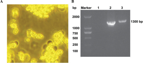 Packaging and verification of recombinant adenovirus Ad-hTK1-hTIMP1. (A) Morphological changes in Ad-hTK1-hTIMP1 transfected HEK293A cells (magnification, ×100): The partial plaque formation of HEK293A cells after 10 days under an inverted microscope. (B) Identification of mMCV-hTIMP1 fragment using PCR. Lane 1, negative control; Lane 2: positive control, PCR product of pDC316-hTK1-hTIMP1; Lane 3: 1,338 bp PCR products detected from Ad-hTK1-hTIMP1. PCR, polymerase chain reaction; TK1, tissue kallikrein 1; TIMP1, tissue inhibitor of matrix metalloproteinase 1.