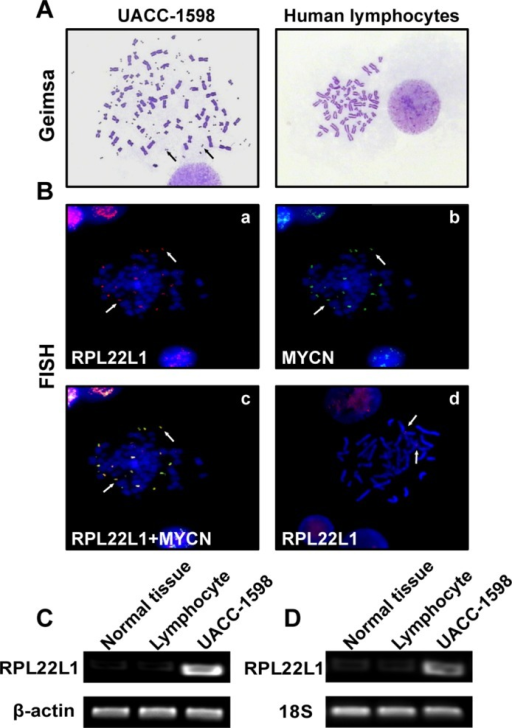 RPL22L1 was amplified on DMs and over-expressed in UACC-1598 cells.(A) Representative pictures of metaphase chromosomes of UACC-1598 and normal human lymphocytes. Arrows indicate DMs in UACC-1598 cells (magnification, ×1,000). (B) Representative images of FISH analysis. Metaphase chromosomes of UACC-1598 and human lymphocytes were detected with DNA probes. (a) Red probe indicates RPL22L1 and (b) green probe indicates MYCN; (c) both probes were located at the same locus on DMs as indicated by the arrows, (d) red probe indicates RPL22L1 in normal human lymphocytes (magnification, ×1,000). (C) DNA amplification levels of RPL22L1 detected by PCR, (D) RT-PCR result of mRNA expression levels of RPL22L1 in different samples.
