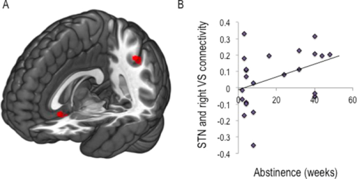 Subthalamic nucleus connectivity in binge drinkers and alcohol use disorders. (A) Independent samples t test to compare region of interest to whole-brain voxel connectivity maps for subthalamic nucleus (STN) between groups revealed reduced connectivity of the STN with both the subgenual cingulate cortex and the inferior parietal cortex (cluster-extent threshold analysis p < .05) compared with age- matched healthy volunteers. (B) A trend toward a positive correlation (p = .058) was observed between weeks abstinent and connectivity between STN and right ventral striatum (VS) in individuals with alcohol use disorder.