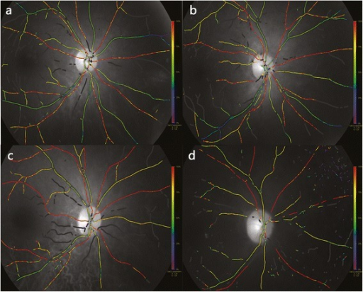 Pseudocolor fundus maps of healthy individual and diabetic patients with various severity: DM with no obvious DR, NPDR and PDR. a A healthy 58 yrs female: A_SatO2 = 95.26 %, V_SatO2 = 57.54 %, A_diameter = 13.14 pixels, V_diameter =15.24 pixels. b A 60 yrs femal, DM patient with no obvious DR: A_SatO2 = 97.47 %, V_SatO2 = 63.17 %, A_diameter = 12.34 pixels, V_diameter = 15.49 pixels. c A 56 yrs femal, NPDR patient: A_SatO2 = 99.0 %, V_SatO2 = 69.61 %, A_diameter = 13.56 pixels, V_diameter = 17.04 pixels. d A 52 yrs male PDR patient: A_SatO2 = 115.73 %, V_SatO2 = 69.67 %, A_diameter = 11.56 pixels, V_diameter = 18.51 pixels