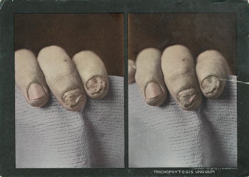 <p>Stereographies of 3 fingers with nail infections by ringworms.  Stereoscopic skin clinic.</p>
