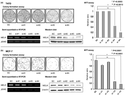 Effect of knockdown of MELK by small-interfering RNA (siRNA) on cell viability and proliferation. Four psiH1 promoter-based siRNA constructs (si-#1, si-#2, si-#3 and si-#4) were introduced into (a) T47D and (b) MCF-7 cell lines. SC refers to scramble used as a control for siRNA experiments. Gene silencing was evaluated by semi-quantitative RT-PCR and western blot analyses at four and five days after neomycin selection, respectively. β2-microglobulin (β2MG) was used as a control for normalization of semi-quantitative RT-PCR, and β-actin was used as a control in western blot analysis. MTT (3-(4,5-dimethylthiazol-2-yl)-2,5-diphenyltetrazolium bromide) assays were performed to evaluate cell viability at 10 days after neomycin selection, and graphed after standardization using the scramble control (SC) as 1.0 (T47D, P = 0.0003, P = 0.0013; MCF-7, P = 0.0001, P = 0.0001; unpaired t-test). Colony formation assays were carried out three weeks after neomycin selection (see Materials and methods). Two siRNA constructs (si-#3 and -#4) showed significant knockdown effects against internal MELK expression and inhibited cell growth in both T47D (a) and MCF-7 (b) cell lines. Values represent the average from triplicate experiments. Error bars indicate standard deviation.