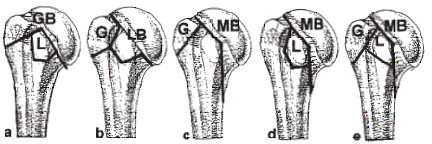 The further division of type B fractures (Three-part B-fractures) depends on the additionally occurring tuberosity fractures. a) GBL fractures = incomplete fracture of the anatomical neck with extension into the greater tuberosity (GB) with a fracture of the lesser tuberosity. b) LBG fractures = incomplete fracture of the anatomical neck with extension into the lesser tuberosity (LB) with a fracture of the greater tuberosity. c) MBG fractures = incomplete articular fractures with an medial metaphyseal fragment at the humeral head (MB) with a fracture of the greater tuberosity. d) MBL fractures = incomplete articular fractures with an medial metaphyseal fragment at the humeral head (MB) with a fracture of the lesser tuberosity. e) MBT fractures = 4-Part B fractures appear which are MB fractures in combination with a fracture of both tuberosities (G and L = T) = MBT fractures.