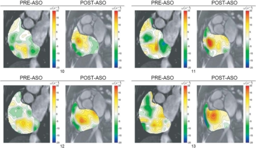 Vorticity visualization of right atrial flow pre- and post-ASO.Vorticity contour maps are superimposed onto cardiac MR images and presented. The vorticity representation by the flow map in color codes can be referenced against scales (in metric units of per second) on the right hand side. The range of the vorticity given by ωMin to ωMax is stated below each result set with the subscripts 1 and 2 representing pre- and post-ASO conditions respectively.