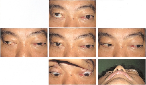 Preoperative photography of a 48-year-old man suffering diplopia, with marked limitation of ocular movement, chemosis, proptosis in the left eye.