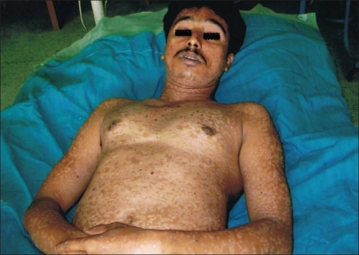 Photograph of elder sibling showing hypopigmented lesions all over the body, along with hyperpigmented, black colored plaques over chest, abdomen, arms. Scars of previous operations are seen over chest wall and right nasolabial fold