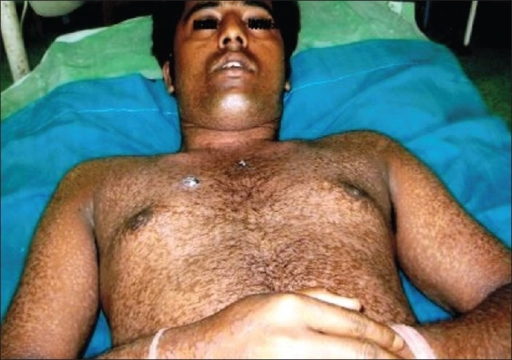 Photograph of younger sibling showing hypopigmented lesions all over the body and two scaly erythematous lesions over the chest wall