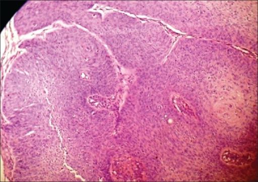 Microphotograph of Bowen's disease where dysplastic keratinocytes are involving the entire thickness of epidermis (H and E, ×100)