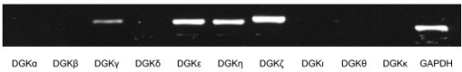 Expressions of diacylglycerol kinase (DGK) isoforms in normal human right atrium.