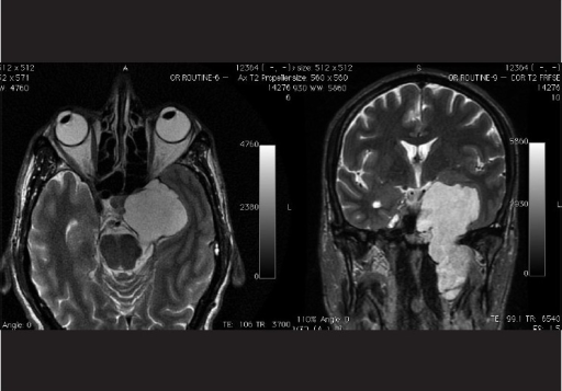 A 54 year old non diabetic, non hypertensive male; who presented with a 6 month old history of left sided VI nerve palsy. Axial T2 weighted image (left) and coronal T2 weighted FRFSE (fast relaxation fast spin echo) image (right) showing a large fairly well circumscribed lobulated heterogenous mass in the left cavernous sinus, displaying a heterogenous hyperintense signal. Note that the cavernous internal carotid artery is not seen separately on the left side
