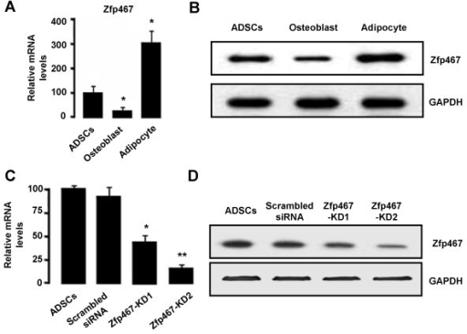 The mRNA and protein levels of Zfp467 in cultured adipocyte, osteoblast and undifferentiated ADSCs. The mRNA and protein levels of Zfp467 in adipocyte and osteoblast derived from ADSCs at day 14 and undifferentiated ADSCs (Day 0) were measured using qRT-PCR (A) and Western blot analysis (B). The data are representative of three independent experiments. The two si-Zfp467 vector (pSilencer4.1-si-Zfp467 with neomycin resistance), which produces specific siRNA (Zfp467-KD1 and -KD2) were used in the experiment. Scrambled siRNA was used as a control for siRNA-Zfp467. The efficiencies of Zfp467 RNAi in ADSCs were evaluated using qRT-PCR (C) and Western blot analysis (D).