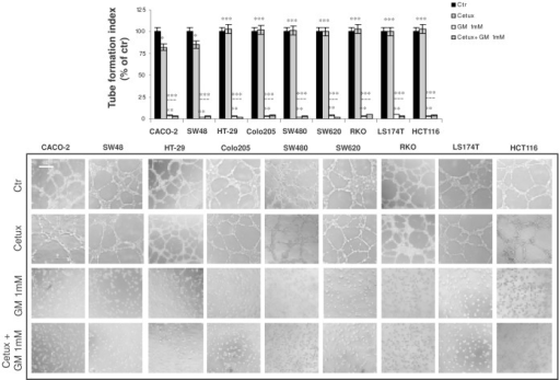 Effect of gabexate mesilate and cetuximab, alone and in combination, on CRC conditioned medium-induced angiogenesis.Evaluation by in vitro Matrigel angiogenesis assay of EA.hy926 endothelial cell differentiation in capillary-like structures after 24 hrs incubation with the conditioned medium of CACO-2, SW48, HT-29, Colo205, SW480, SW620, RKO, LS174T and HCT-116 cells, previously treated for 6 hrs with cetuximab 100 µg/ml and gabexate mesilate 1 mM, alone and in combination. Tube formation index was assessed as described in Material and Methods section. For each cell line, the mean value of untreated samples was assumed as 100% and mean values of treated cells were plotted as percentages with respect to their matched controls. Photographs are representative of three independent experiments with similar findings. Cetux: cetuximab; GM: gabexate mesilate. Scale bar: 50 µm. *p<0.05; **p<0.001; ***p : not significant.
