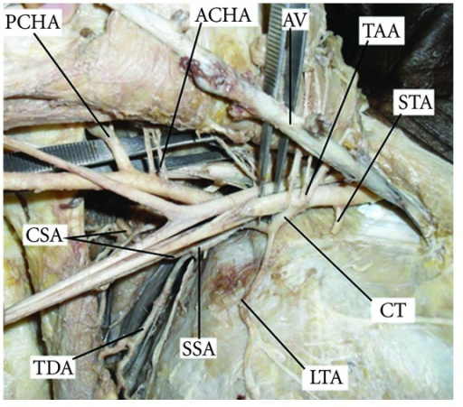 fig2:Variant Branching Pattern of Axillary Artery: A Case ...