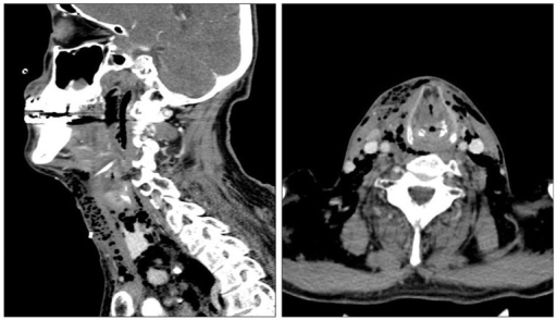 Preoperative computed tomography scans show a large amount of subcutaneous emphysema in the anterior lateral cervical regions.