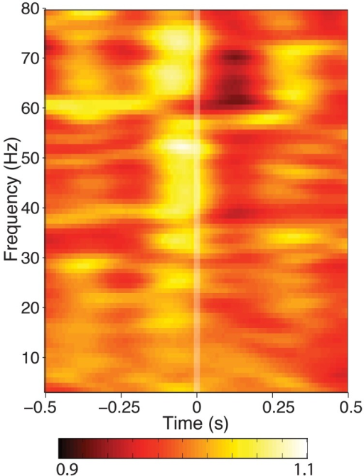 Time-frequency spectrogram of hippocampal activity aligned to fixation onset during visual search, grand averaged across each patient. Frequency was measured from 3 to 80 Hz at 1 Hz intervals, time was measured in 800 ms Hanning-tapered windows, shifted every 10 ms. For visualization of each frequency band, power is presented in each band relative to the average seen for that frequency band between ±800 ms around fixation onset. None of the hippocampal recording sites showed theta power modulation, though some exhibited modulation in higher frequency bands.