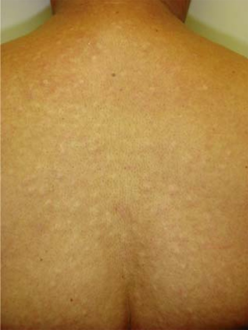 Case 1 - papules on the back