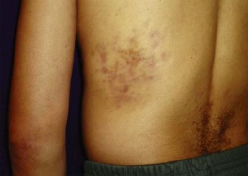 Case 2: erythematous-violaceous indurated mildly pruritic and painless lesionson trunk