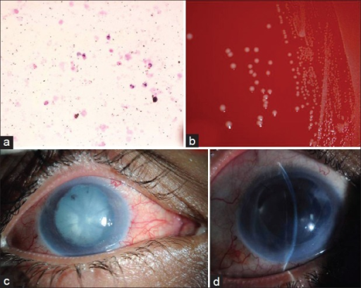 (a) Histologic smear of the aqueous showing the predominant polymorphonuclear leukocytes (hematoxylin and eosin, original magnification ×400). (b) Blood agar plate showing the bacterial colonies with surrounding beta hemolysis. (c) The clinical appearance of the right eye cataract and posterior synechiae. (d) Postoperative slit-lamp photo of his right eye with intraocular lens (IOL) in the capsular bag