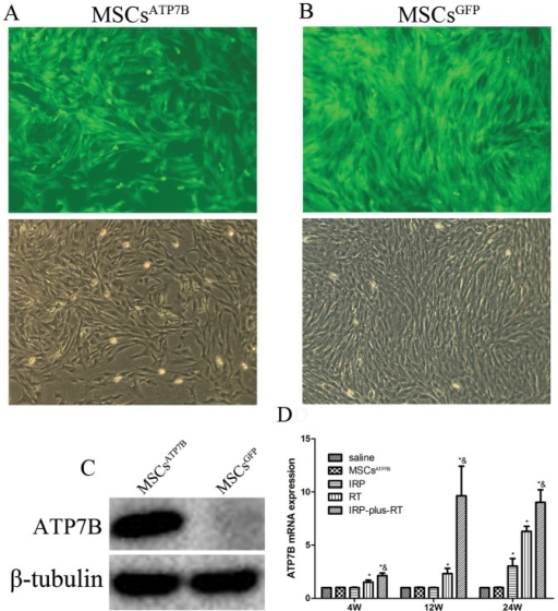 Transfection efficacy, expression of ATP7B post-transfection and post-transplantation.(A) Transfection efficacy of pRRL.PPT.SF.ATP7B.i2GFPBsd.pre in BM-MSCs. (B) Transfection efficacy of pRRL.PPT.SF.i2GFPpre in BM-MSCs. Transfected cells were observed under both a fluorescence microscope and a regular microscope (×100); (C) Expression of ATP7B in BM-MSCs post-transfection assessed by Western Blot. (D) Expression of ATP7B in each group at each time-point following transplantation in vivo. *p<0.05 compared with the saline group, &p<0.05 compared with IRP and RT group, respectively.