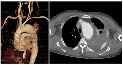 On a preoperative whole body computed tomography scan, a ruptured thoracic aortic aneurysm was suspected, and the maximal diameter of the thoracic aorta was 65 mm.