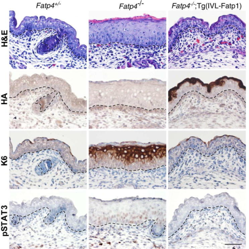 Amelioration of skin phenotypes in Fatp4−/−;Tg(IVL-Fatp1) miceDorsal skin sections from E16.0 embryo littermates were subjected to hematoxylin and eosin staining (top row) and immunohistochemical analyses followed by counterstaining with hematoxylin (bottom three rows). The thickened epidermis phenotype seen in Fatp4−/− newborns was normalized in Fatp4−/−;Tg(IVL-Fatp1) newborns (top row). The HA-tagged FATP1 encoded by the transgene was detected primarily in granular keratinocytes in Fatp4−/−;Tg(IVL-Fatp1) mice (second row). The ectopic expression of keratin 6 seen in Fatp4−/− newborns was diminished in Fatp4−/−;Tg(IVL-Fatp1) mice (third row). The nuclear localization of pSTAT3 shown in Fatp4−/− newborns was also diminished in Fatp4−/−;Tg(IVL-Fatp1) mice (bottom row). Dashed lines demarcate the dermo-epidermal boundary. Scale bar is 50 μm.