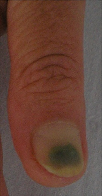 Onycholysis And Secondary Pseudomonas Aeruginosa Infection Of The Finger Nail In A 68 Year