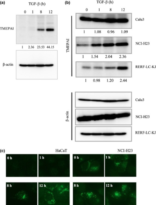 Enhanced expression of TMEPAI in lung cancer cells. (a) Induction of TMEPAI by 5 ng/mL transforming growth factor-β (TGF-β) in HaCaT cells. Endogenous TMEPAI was detected by a monoclonal anti-TMEPAI antibody (9F10). β-actin was used as the loading control. Relative amounts of TMEPAI (TMEPAI/β-actin) were measured by NIH Image and are shown below the panel. (b) Expression of TMEPAI in the lung cancer cell lines Calu3, RERF-LC-KJ, and NCI-H23 detected as in (a). (c) HaCaT or NCI-B23 cells were treated with 5 ng/mL TGF-β as indicated. After treatment, the cells were subjected to fluorescence microscopy using anti-TMEPAI antibody.