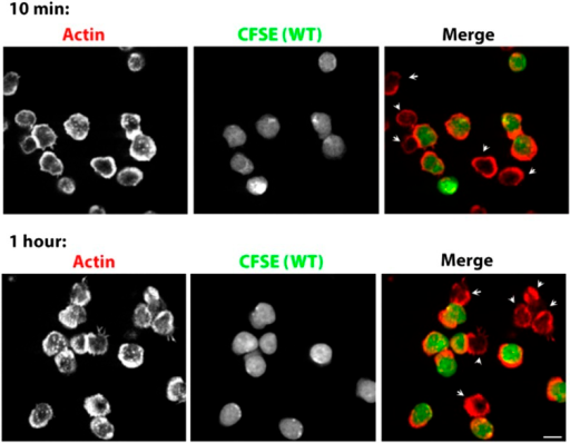 Prolonged Lack of foci in WASP-/- T cells. CD4 T cells from WT mice were isolated and labeled with CFSE (carboxyfluorescein diacetate, succinimidyl ester, 5μM, pseudocolored green). CFSE labeled WT cells were mixed with WASP-/- T cells, incubated with surface coated with 2C11 and ICAM1 for 10 min (upper panels) or 1 hour (bottom panels), fixed and stained with Alexa568-phalloidin (pseudocolored red). The synaptic contacts cells were then imaged using spinning disc confocal microscope. Note that while WT cells (CFSE positive, green) maintain foci at 1 hour post activation, WASP-/- T cells (arrowheads) persistently lack foci. This lack of foci is clearly visible in more than 85% of WASP-/- T cells, both at 10 min and 1 hour (n>48).DOI:http://dx.doi.org/10.7554/eLife.04953.039
