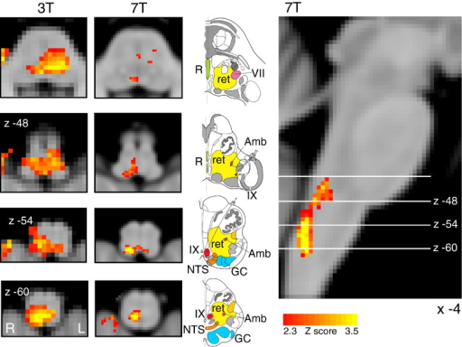 Demonstration of the use of finger opposition as a functional localiser in brainstem fMRI at 3 T and at 7 T, by imaging activation in the ipsilateral cuneate nucleus of the medulla (z -54). The 3 T data is derived from previously-published results (Pattinson et al., 2009a). This technique provides confidence in the analysis model and registration accuracy of the current 7 T study. The images consist of a colour-rendered statistical map superimposed on a standard (MNI 1 mm3) brain. Significant regions are displayed with a threshold Z > 2.3, with a cluster probability threshold of p < 0.05 (corrected for multiple comparisons). The sagittal image on the right displays the position of slices, for clarity only displayed from the 7 T acquisition. Abbreviations: R, raphe nuclei; ret, nuclei reticularis; VII, facial nucleus; Amb, nucleus ambiguous; IX, glossopharyngeal nucleus; NTS, nucleus tractus solitaries; GC, gracile (medial) and cuneate (lateral) nuclei (in blue). R (right) and L (left) indicate image orientation. Original line drawings adapted from Duvernoy (1995).