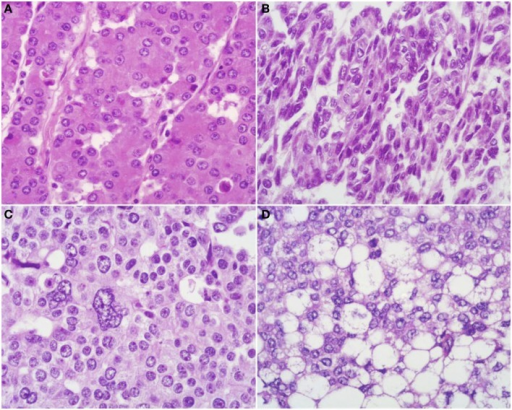 Uncommon Histological Features Of Pancreatic Acinar Cel Open I