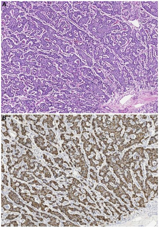 Acinar cell carcinoma in a 1-year-old boy characterized by a trabecular growth (A) resembling that of a pancreatic neuroendocrine tumor. However, tumor cells are strongly immunoreactivity for trypsin (B).