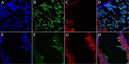 Confocal images of B. subtilis and P. agglomerans infection of sand fly larvae midguts.Anterior midgut image12h post feeding, EGFP-expressing Bs is able to infect the entire length of the midgut. A) DAPI staining; B) Shows Bs distributed throughout the anterior larval gut; C) Immuno-staining for cleaved caspase3 along the lumen of the midgut (the bright red staining in the bottom corner was due to auto-fluorescence associated with remnants of the colony chow previously fed to the larva). D) Merge. 12h post infection with GFP-expressing Pa localized to the posterior region of the midgut epithelium and induces apoptotic activity. E) DAPI staining depicting the midgut epithelium. F) Shows Pa localized on the apical portion of the lumen of the midgut. G) Immuno-staining for cleaved caspase3 along the lumen of the midgut depicting high levels of caspase3 activity. H) Merge. Bars = 50 µm.